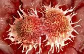 Способы лечения онкологии