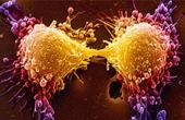 Этиология возникновения рака