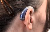 Коррекция слуха