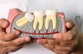 Зуб мудрости: его значение, возможные проблемы и пути их решения