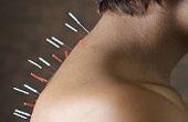 Иглоукалывание: особенности, преимущества, цели