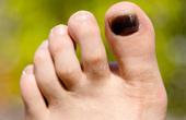 Что такое меланома ногтя на ноге?
