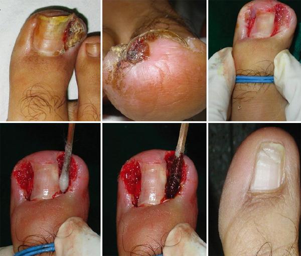 Как развивается меланома ногтя