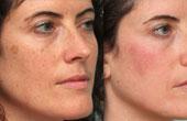 Косметология на страже здоровья и молодости кожи
