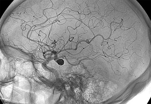 Аневризма мозга: причины, симптомы и методы лечения