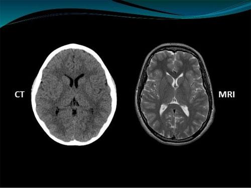 Методы медицинских исследований: компьютерная томография