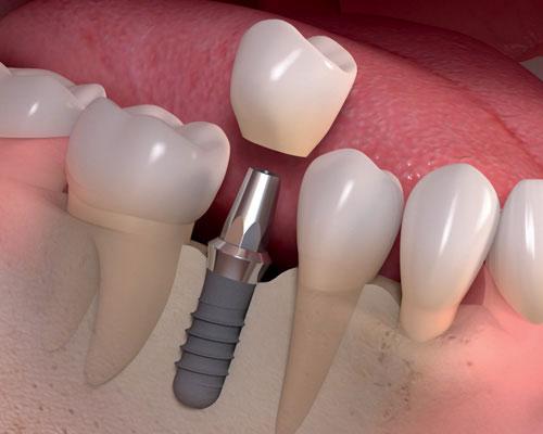 Имплантация зубов: материалы и методики