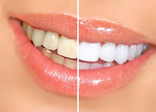 Чистка и отбеливание зубов: зачем, когда и как проводятся процедуры