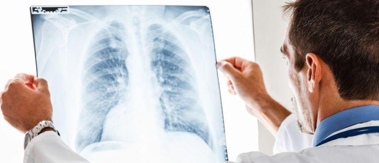 Как лечат рак легких в Израиле