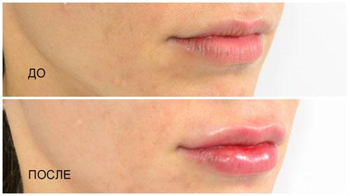 Увеличение губ. Цена и описание процедуры