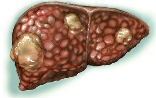 Фиброз печени: симптомы, причины, лечение, профилактика