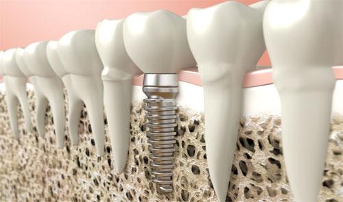 Особенности имплантации зубов при атрофии костной ткани челюсти