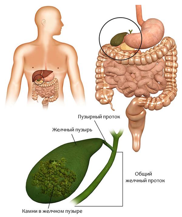 Какие симптомы имеет хронический холецистит?