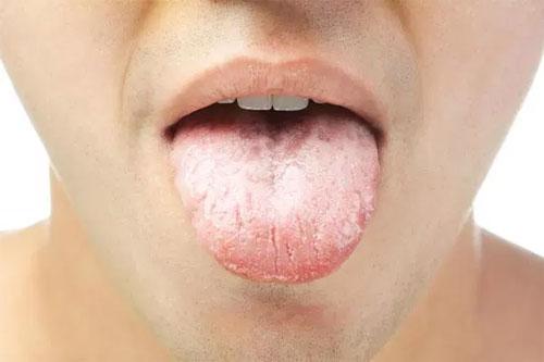 Глоссит как симптом другого заболевания