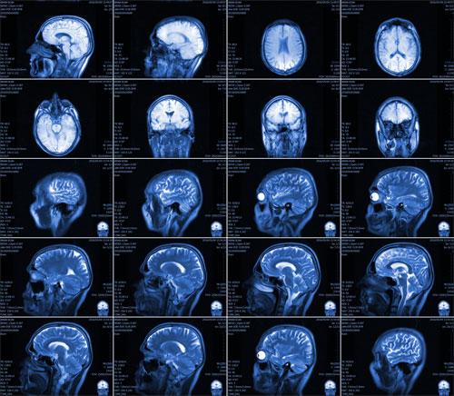 Каковы показания к проведению процедуры МРТ головного мозга