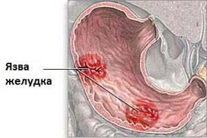 Язва желудка. Лечение народными средствами