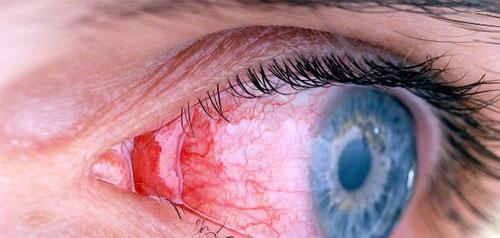 Современные методики лечения и диагностики заболевания глаз