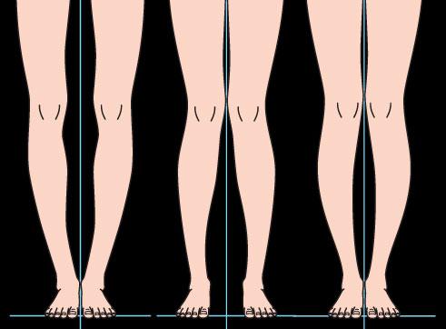 Дефекты формы ног: способы исправления
