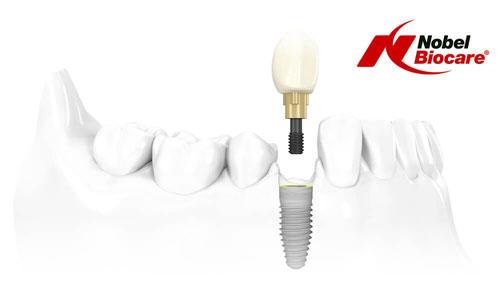 Лазерная имплантация зубов - преимущества, особенности и куда обращаться