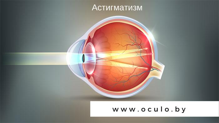 Как подобрать очки и контактные линзы при астигматизме