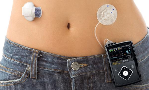 Как лечить инсулиновый шок