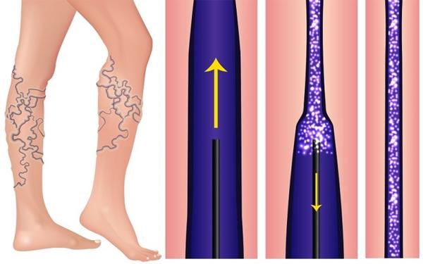 Побочные эффекты склеротерапии
