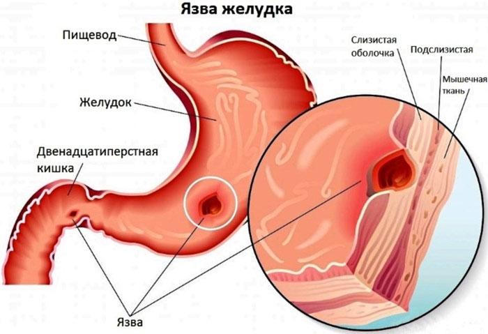 Язва желудка: причины, лечение и профилактика