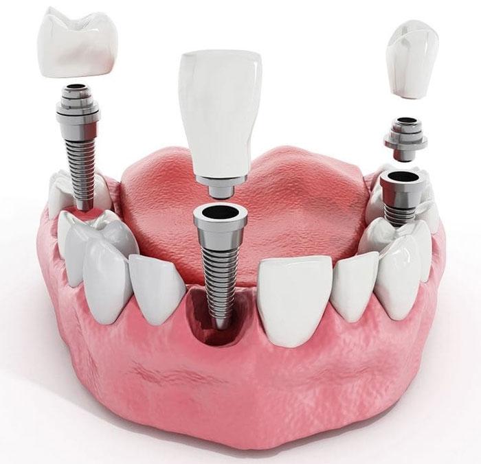 Как найти качественную стоматологию