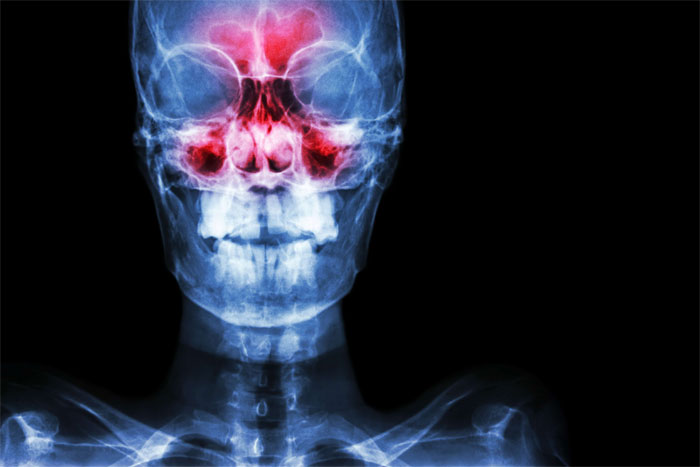 Как и зачем проводят рентген пазух носа