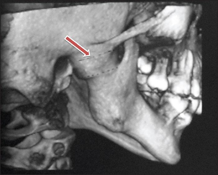 Компьютерная томография височно-нижнечелюстного сустава