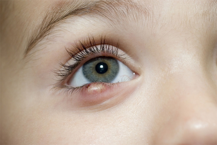 Что нужно знать о глазной стафилококковой инфекции