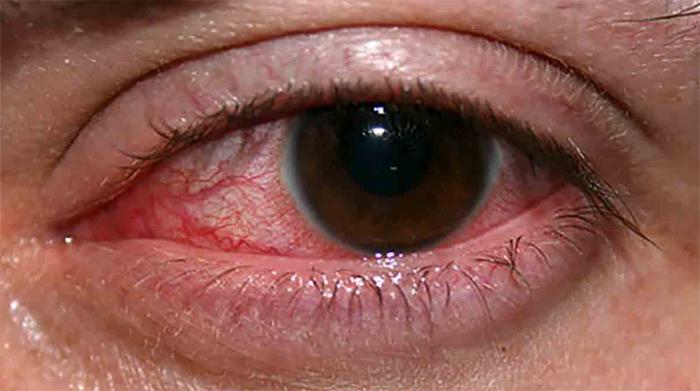 Эндогенный эндофтальмит
