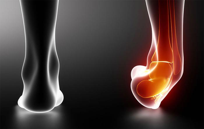 Почему возникает растяжение связок сустава?