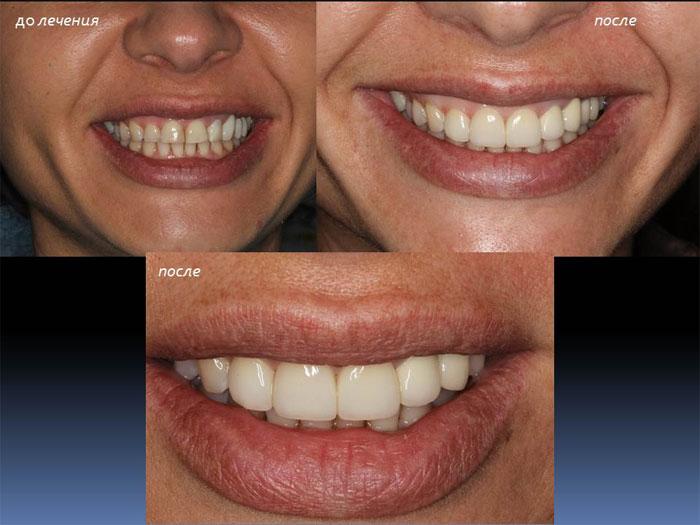 Результаты имплантации зубов