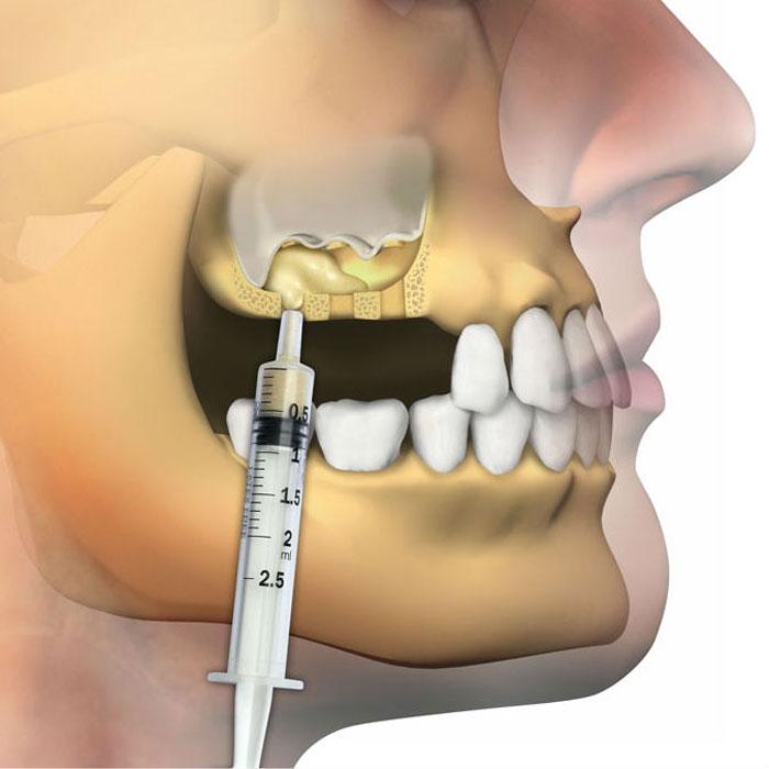 Решение проблемы с недостатком костной ткани зубов