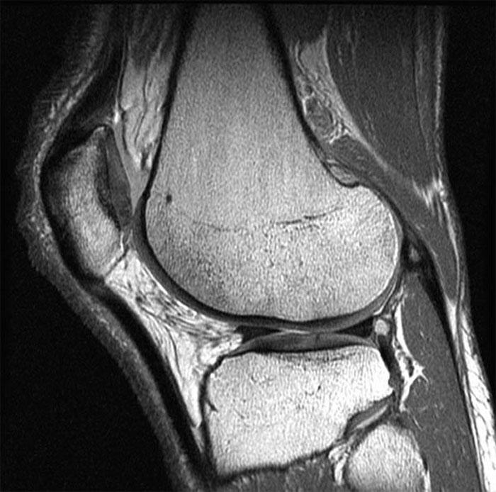 МРТ суставов: надобность и показания