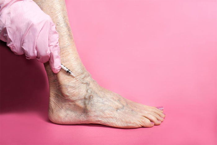 Что такое склеротерапия и ее роль в лечении варикозных вен нижних конечностей