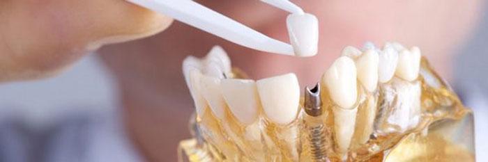 Основное назначение имплантации и протезирования зубов