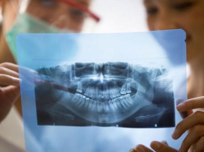 Панорамный снимок зубов по ОМС