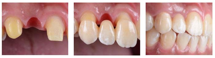 Методы восстановления зубного ряда