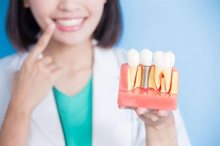 Имплантация зубов: показания к проведению
