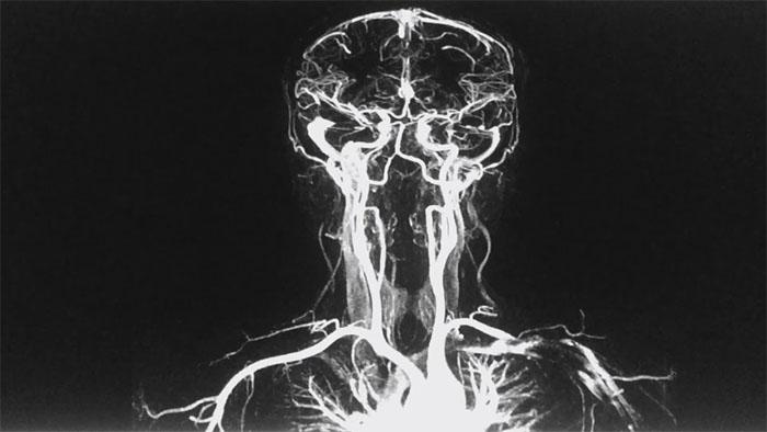Что такое магнитно-резонансная ангиография?