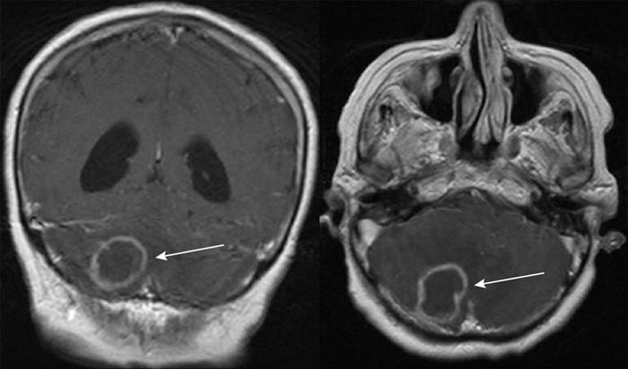 Что такое атаксия мозжечка?