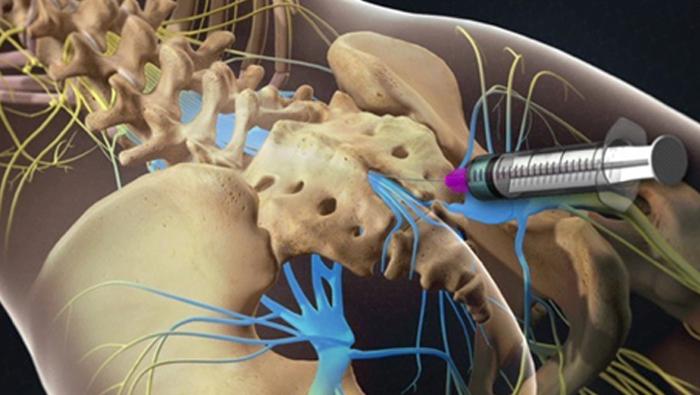 Кому помогает врач невролог?