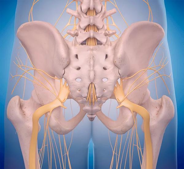 Как облегчить боль в седалищном нерве?