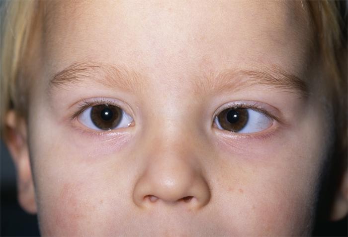 Амблиопия или ленивый глаз