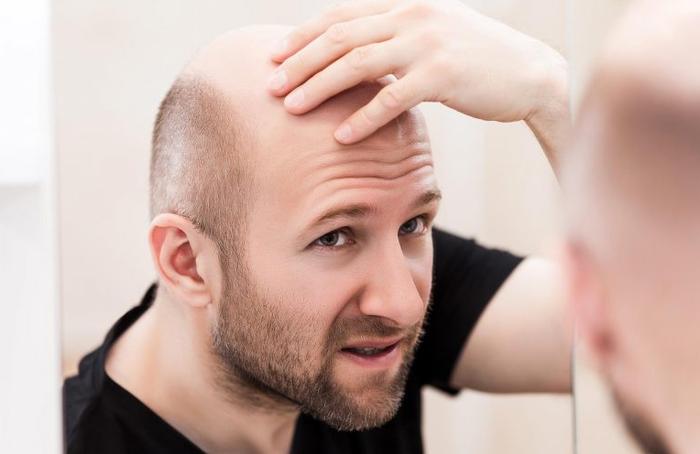 Стволовые клетки помогают лысым людям отрастить волосы