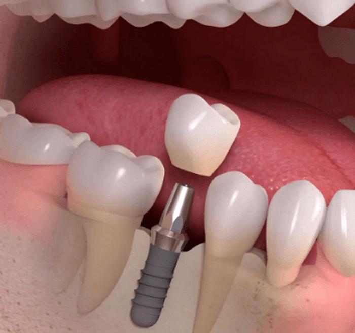 Имплантация зубов: особенности процедуры и показания