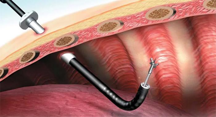 Биопсия легких – диагностики рака и других легочных заболеваний