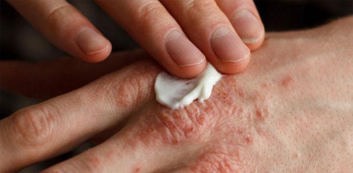 Симптомы и причины псориаза